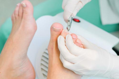 Способы для лечения  онихокриптоза