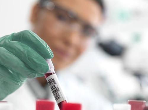 ДНК-анализы